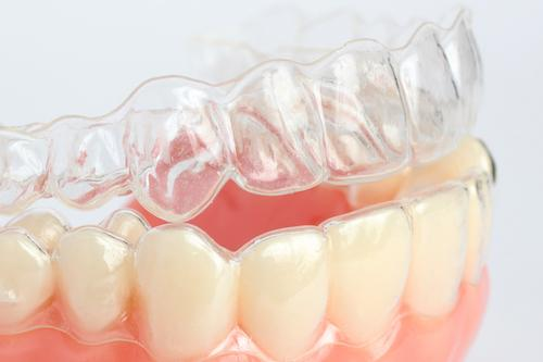 clear aligners in lansing
