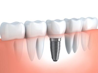 dental implants lansing il