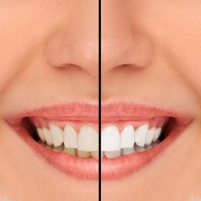 Teeth Whitening | Lansing IL