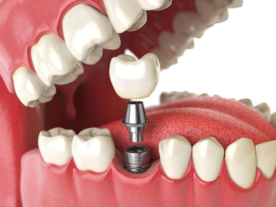 Diagram showing how dental implants work in Lansing, IL